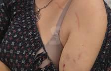 Presunta agresión por lazos amarillos en Torrefarrera