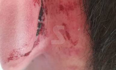 Contusions múltiples - Les víctimes presentaven diversos cops per tot el cos. A la imatge de dalt, un dels joves presenta una ferida darrere de l'orella, a més de cops de puny i cops per les extremitats. Asseguren que es van resistir a un roba ...