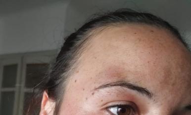 La dona agredida.