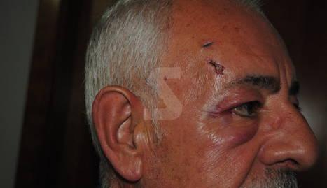 Les ferides que ha denunciat un dels veïns.