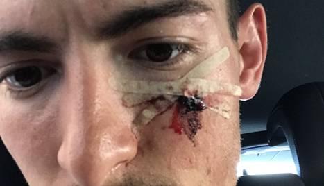 Bernat Font va publicar aquesta foto del seu rostre ferit.