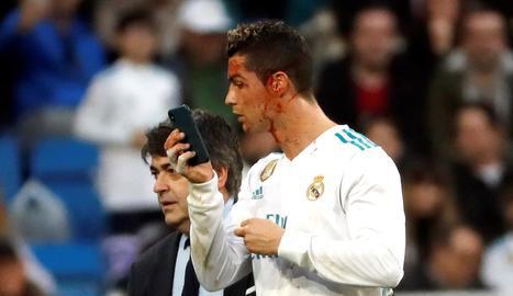 Cristiano es mira en un mòbil el tall que es va fer durant el partit i que va requerir un parell de punts.
