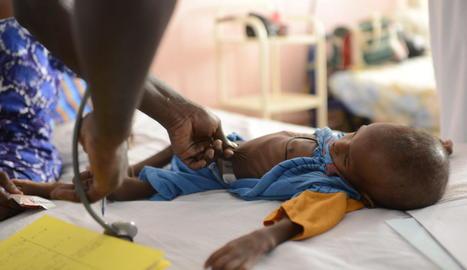 Imatge d'un nen desnodrit en un hospital del Senegal.