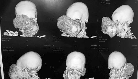 Cavadas extirpa a un nen africà un dels tumors més grans que ha operat