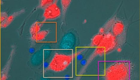 Imatge de cèl·lules T (en blau brillant) que destrueixen cèl·lules de melanoma ocular uveal (en roig) després del tractament amb tebentafusp.