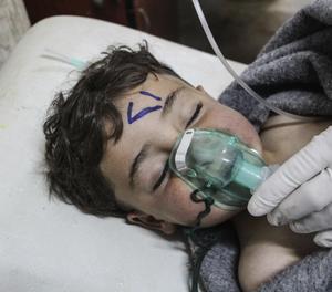 Un niño recibe tratamiento médico tras un supuesto ataque químico contra la localidad de Jan Shijún