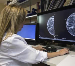Una unitat per al tractament del càncer de mama.