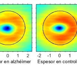 Alguns canvis a la retina poden avançar el diagnòstic de l'alzheimer