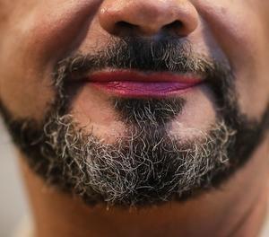 No només es trasplanta pèl per evitar la calvície, també per lluir barba