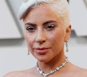 Lady Gaga recupera il·lesos els dos gossos que li havien robat